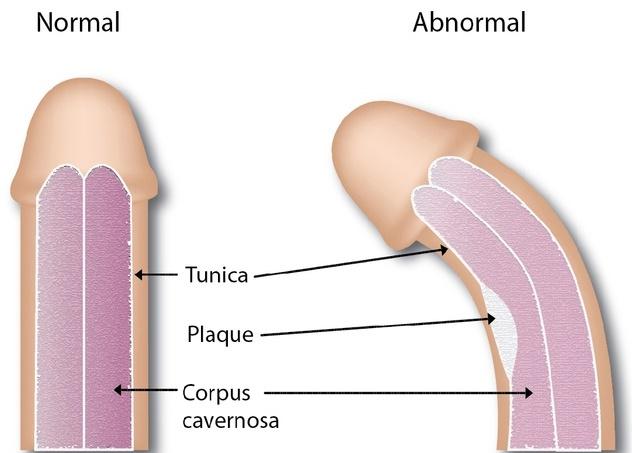 boala contorsionată a penisului