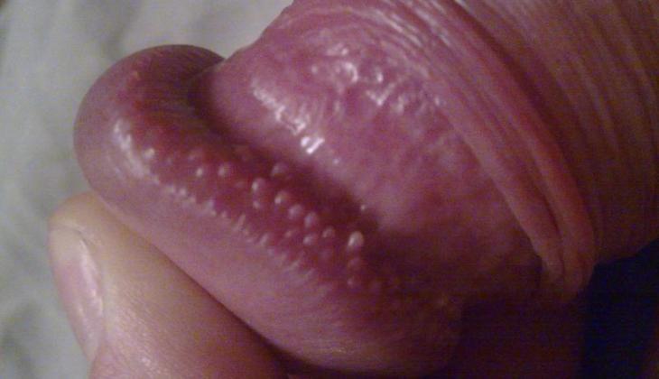 de ce bărbații au o erecție mult timp penisul unui bărbat