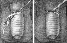 vătămarea inelului penisului inele metalice pentru penis și scrot