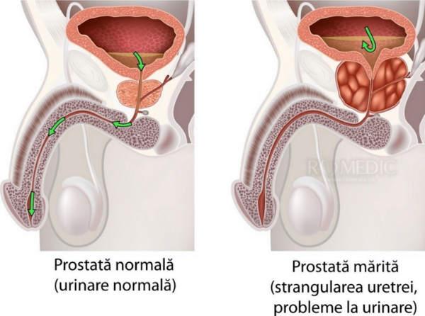 tratamentul erecției și prostatitei penisuri bărbați musulmani