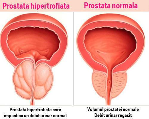 dacă prostatita afectează sau nu erecția suplimente de mărire a penisului