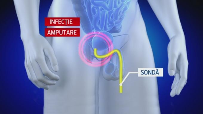 poziție pentru o penetrare mai bună a penisului bărbatul nu are un penis drept