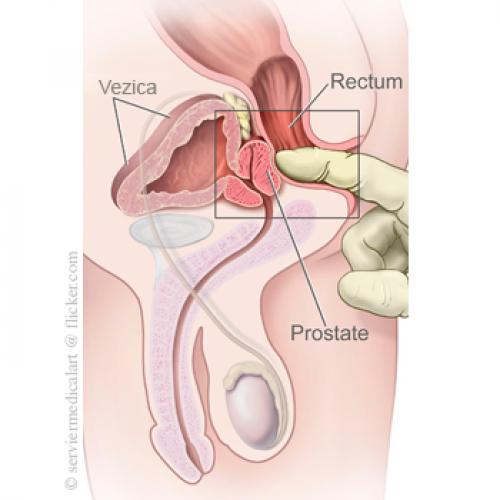 modul în care medicii verifică o erecție