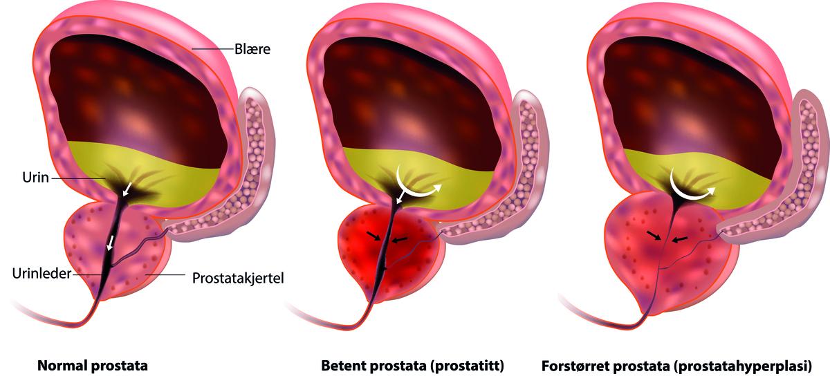 erecții spontane cu prostatită