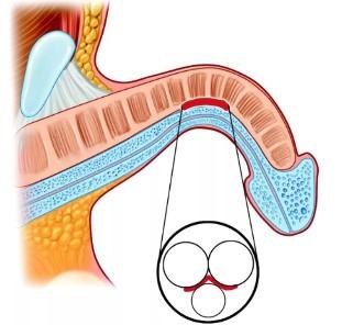 curbura penisului este o patologie penis la telefon