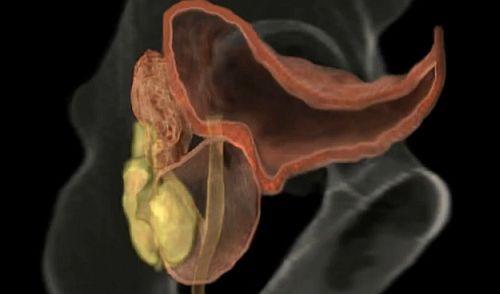 ce trebuie făcut dacă erecția a dispărut penisul a devenit mai rău