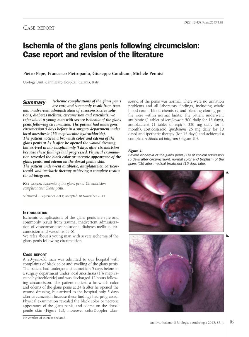 după amputarea penisului Proviron erecție