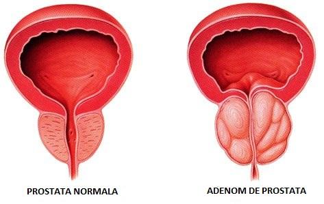 ce este erecția unui bărbat îmbunătățirea erecției cu un extender
