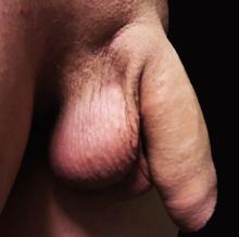 are un penis foarte mic