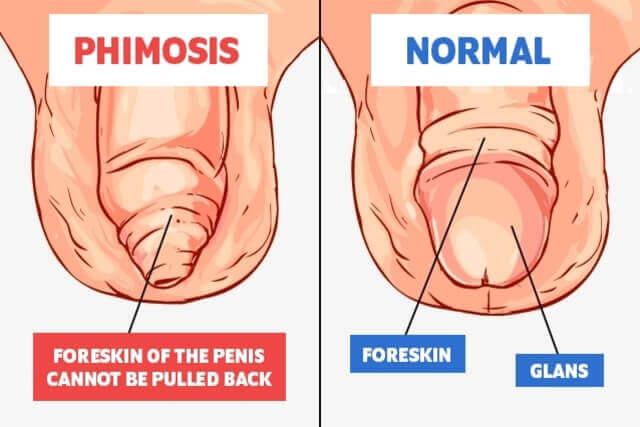 forumul problemelor de erectie modalități de prevenire a erecției
