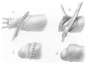 penisuri interesante agenți de îngroșare și de întindere a penisului