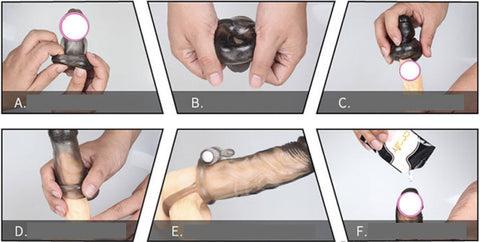 cum se folosește un penis ureaplasmoză și erecție